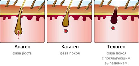 черные точки после лазерной эпиляции depil.kiev.ua